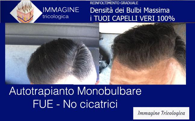 Immagine Tricologica - Autotrapianto Capelli - Tecnica FUE ...